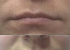 Филер для губ Renaissance Lips Color Touch (Израиль)