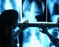 Всемирный день борьбы с туберкулезом: всю неделю можно пройти флюорографическое обследование бесплатно